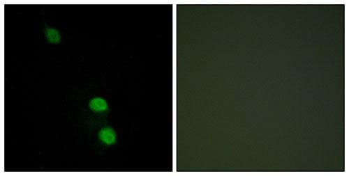 Immunocytochemistry/ Immunofluorescence - Anti-TEA domain family member 2/ETF antibody (ab196669)