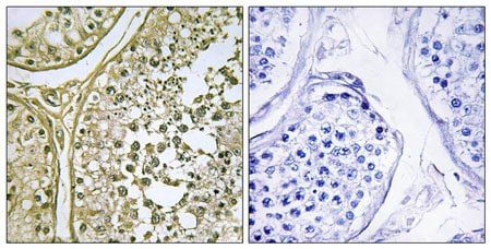 Immunohistochemistry (Formalin/PFA-fixed paraffin-embedded sections) - Anti-CSNK1A1 + CSNK1A1L antibody (ab196684)