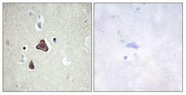 Immunohistochemistry (Formalin/PFA-fixed paraffin-embedded sections) - Anti-ADCY8/AC8 antibody (ab196686)