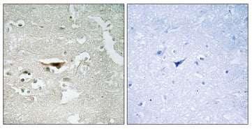 Immunohistochemistry (Formalin/PFA-fixed paraffin-embedded sections) - Anti-PKIB antibody (ab196689)
