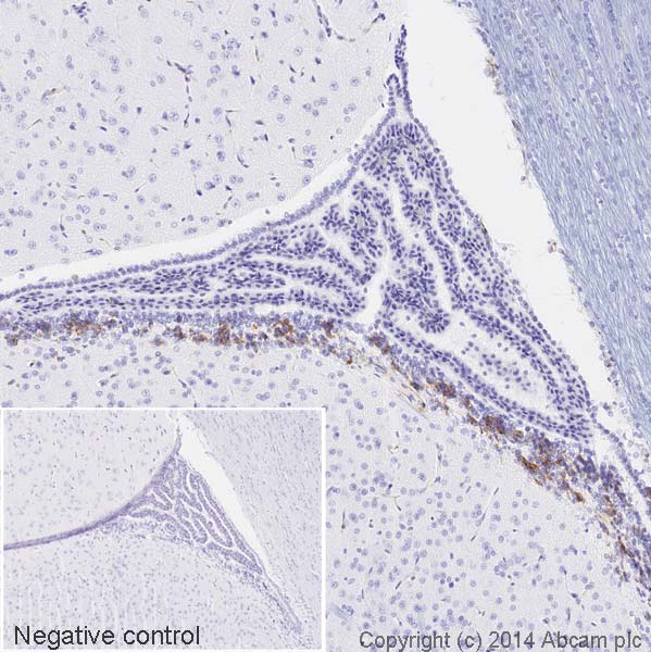 Immunohistochemistry (Formalin/PFA-fixed paraffin-embedded sections) - Anti-Nestin antibody [rat-401] (HRP) (ab196694)