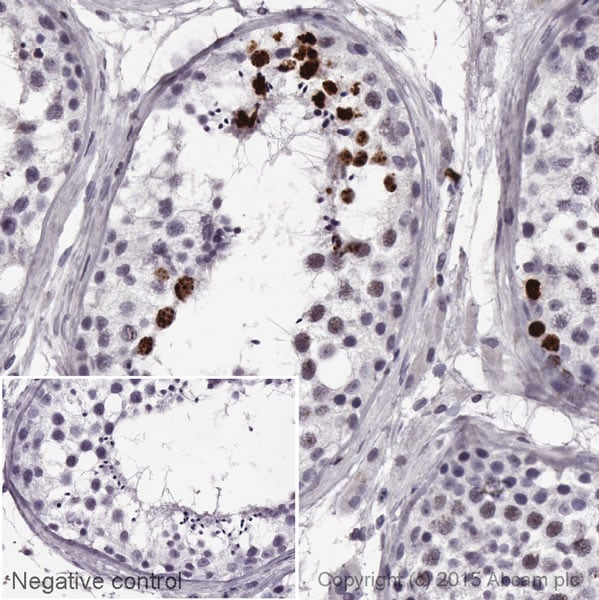 Immunohistochemistry (Formalin/PFA-fixed paraffin-embedded sections) - HRP Anti-Coilin antibody [IH10] (ab196715)