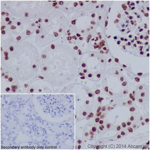 Immunohistochemistry (Formalin/PFA-fixed paraffin-embedded sections) - Anti-Histone H3 (asymmetric di methyl R63, symmetric di methyl R63, methyl R63) antibody [EPR17722] (ab196724)