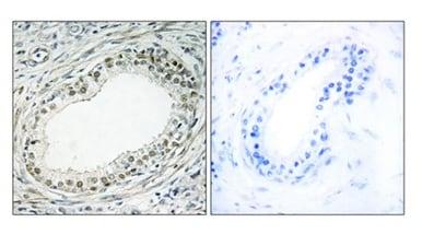 Immunohistochemistry (Formalin/PFA-fixed paraffin-embedded sections) - Anti-RPL36 antibody (ab196734)