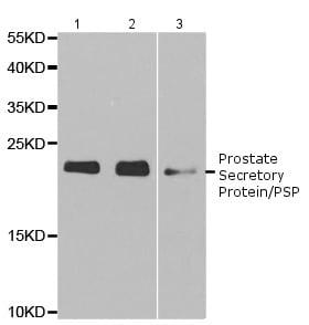 Western blot - Anti-Prostate Secretory Protein/PSP antibody (ab196754)