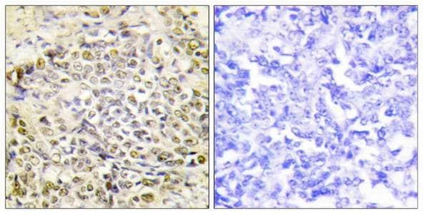Immunohistochemistry (Formalin/PFA-fixed paraffin-embedded sections) - Anti-IRX2 antibody (ab196755)