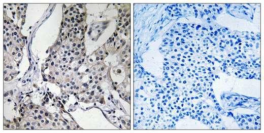 Immunohistochemistry (Formalin/PFA-fixed paraffin-embedded sections) - Anti-PHLDA3 antibody (ab196757)