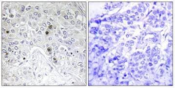Immunohistochemistry (Formalin/PFA-fixed paraffin-embedded sections) - Anti-BATF antibody (ab196762)
