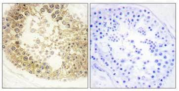 Immunohistochemistry (Formalin/PFA-fixed paraffin-embedded sections) - Anti-C2orf40/ECRG4 antibody (ab196763)