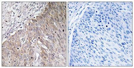 Immunohistochemistry (Formalin/PFA-fixed paraffin-embedded sections) - Anti-APOL2 antibody (ab196771)