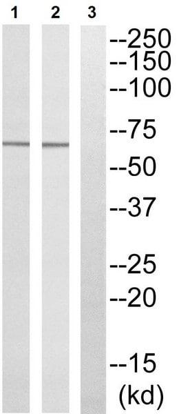 Western blot - Anti-KLHL3 antibody - N-terminal (ab196776)