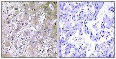 Immunohistochemistry (Formalin/PFA-fixed paraffin-embedded sections) - Anti-ACOT12 antibody (ab196783)