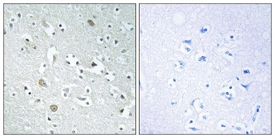 Immunohistochemistry (Formalin/PFA-fixed paraffin-embedded sections) - Anti-PLA1A/NMD antibody (ab196794)
