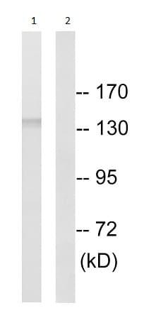 Western blot - Anti-SLC4A8 + SLC4A10 antibody (ab196798)