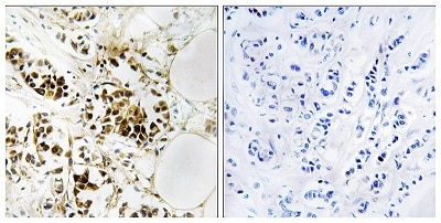 Immunohistochemistry (Formalin/PFA-fixed paraffin-embedded sections) - Anti-RGS5 antibody (ab196799)