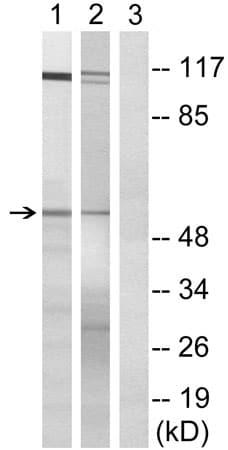Western blot - Anti-SFRS11 antibody (ab196801)
