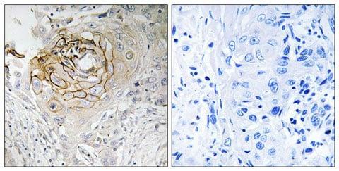 Immunohistochemistry (Formalin/PFA-fixed paraffin-embedded sections) - Anti-Nav1.7 antibody (ab196806)