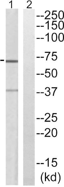 Western blot - Anti-Slc6a6/Taut antibody (ab196821)