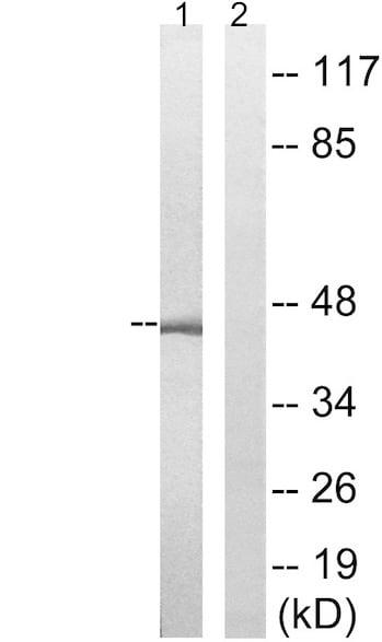 Western blot - Anti-PEX10 antibody (ab196827)