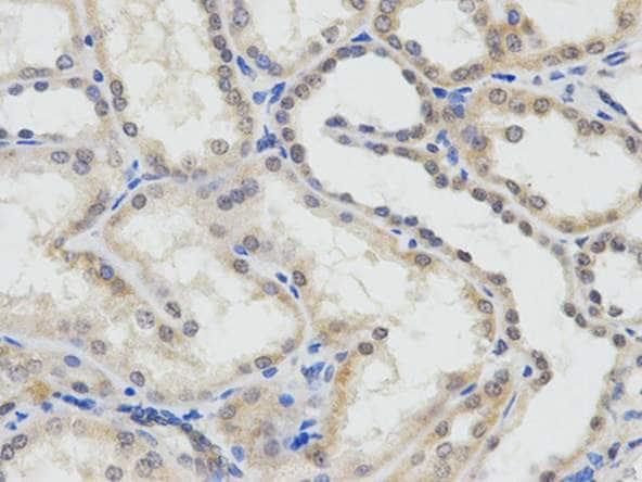 Immunohistochemistry (Formalin/PFA-fixed paraffin-embedded sections) - Anti-ERCC1 antibody (ab196869)