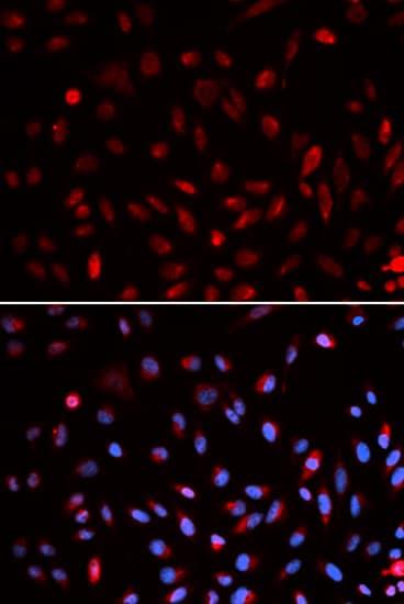 Immunocytochemistry/ Immunofluorescence - Anti-ERCC1 antibody (ab196869)