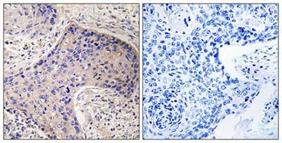 Immunohistochemistry (Formalin/PFA-fixed paraffin-embedded sections) - Anti-CD75 antibody (ab196890)