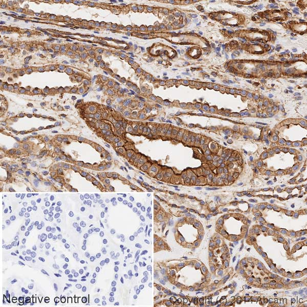 Immunohistochemistry (Formalin/PFA-fixed paraffin-embedded sections) - Anti-alpha smooth muscle Actin antibody [E184] (HRP) (ab196920)