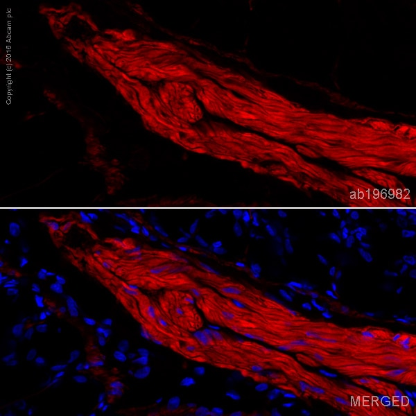Immunohistochemistry (Frozen sections) - Alexa Fluor® 647 Anti-smooth muscle Myosin heavy chain 11 antibody [EPR5336(B)] (ab196982)