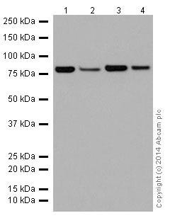 Western blot - Anti-ABCD1/ALD antibody [EPR15929] (ab197013)