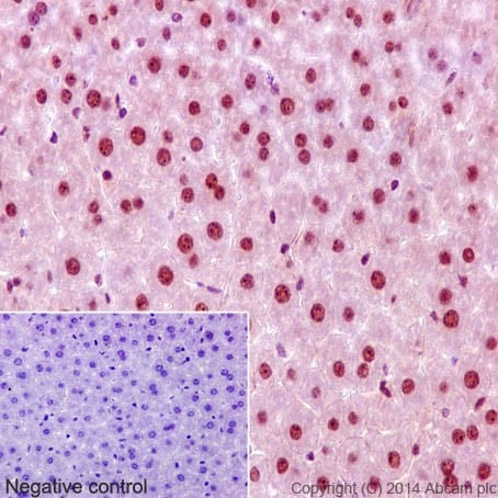 Immunohistochemistry (Formalin/PFA-fixed paraffin-embedded sections) - Anti-CHD1L antibody [EPR14515(2)] (ab197019)