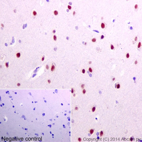 Immunohistochemistry (Formalin/PFA-fixed paraffin-embedded sections) - Anti-HNRNPA0 antibody [EP16085] (ab197023)