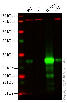 Western blot - Anti-Glutamine Synthetase antibody [EPR16661] (ab197024)