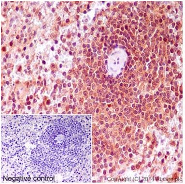 Immunohistochemistry (Formalin/PFA-fixed paraffin-embedded sections) - Anti-MTH1 antibody [EPR15934] (ab197028)