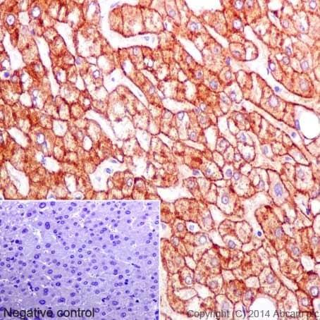 Immunohistochemistry (Formalin/PFA-fixed paraffin-embedded sections) - Anti-ASGR2 antibody [EPR16974] (ab197032)