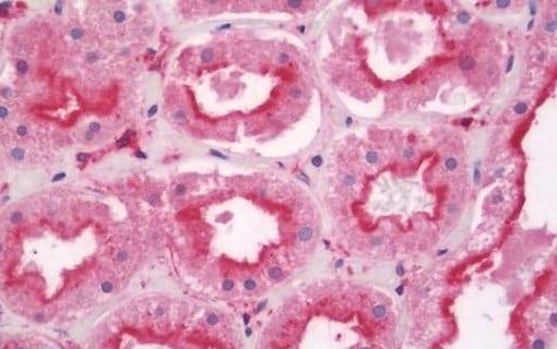 Immunohistochemistry (Formalin/PFA-fixed paraffin-embedded sections) - Anti-Tankyrase binding protein 1 antibody (ab197051)