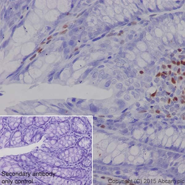 Immunohistochemistry (Formalin/PFA-fixed paraffin-embedded sections) - Anti-MEF2A + MEF2C antibody [EPR19089-34] (ab197070)