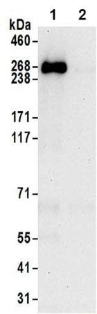 Immunoprecipitation - Anti-TTC28/TPRBK antibody - C-terminal (ab197076)