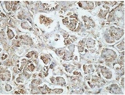 Immunohistochemistry (Formalin/PFA-fixed paraffin-embedded sections) - Anti-BBS4 antibody (ab197122)