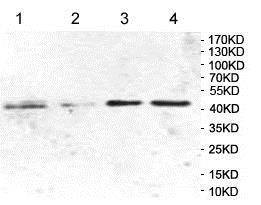 Western blot - Anti-HLAB antibody (ab197166)