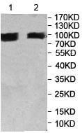 Western blot - Anti-ITIH3 antibody (ab197188)
