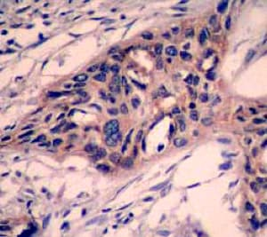Immunohistochemistry (Formalin/PFA-fixed paraffin-embedded sections) - Anti-Caspase-3 antibody [E87] - BSA and Azide free (ab197202)