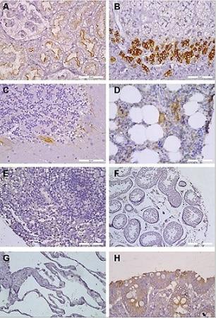 Immunohistochemistry (Formalin/PFA-fixed paraffin-embedded sections) - Anti-CXCR4 antibody [UMB2] - BSA and Azide free (ab197203)