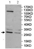 Western blot - Anti-Rab20 antibody (ab197209)