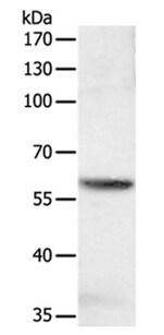 Western blot - Anti-SOCS6 antibody (ab197335)
