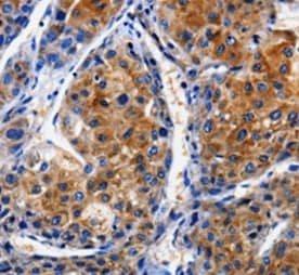 Immunohistochemistry (Formalin/PFA-fixed paraffin-embedded sections) - Anti-CLCA4 antibody (ab197347)