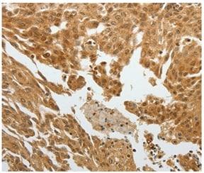 Immunohistochemistry (Formalin/PFA-fixed paraffin-embedded sections) - Anti-RELM beta antibody (ab197361)