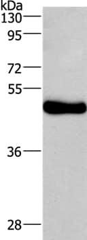 Western blot - Anti-Ceramide glucosyltransferase antibody (ab197369)