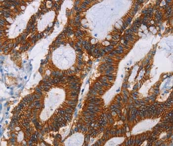 Immunohistochemistry (Formalin/PFA-fixed paraffin-embedded sections) - Anti-GPA33 antibody (ab197370)