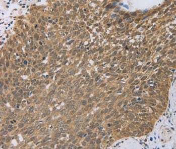 Immunohistochemistry (Formalin/PFA-fixed paraffin-embedded sections) - Anti-PCP4 antibody (ab197377)