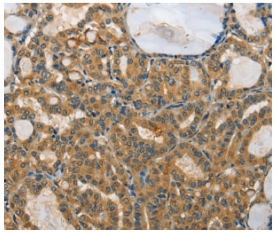 Immunohistochemistry (Formalin/PFA-fixed paraffin-embedded sections) - Anti-RPS27/MPS1 antibody - N-terminal (ab197382)